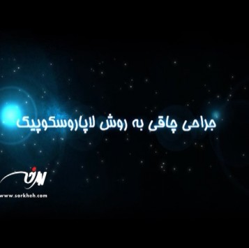 تیزر تبلیغاتی دکتر طاها عنبرا